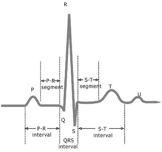 ,简化构建原型系统的复杂性。 通过LabVIEW以及NI采集设备,ECG信号可以快速的被采集并显示。图1显示了一个典型的心电波形周期。当然,过程中,心电信号会被噪声和人为引入的伪影所污染,这些噪声和伪影在我们感兴趣的频段内,并且与心电信号本身有着相似的特性。为了从带有噪声的心电信号中提取出有用的信息,我们需要对原始的心电信号进行处理。 从功能上来说,心电信号的处理可以大致分为两个阶段:预处理和特征提取(如图3所示)。预处理阶段消除和减少原始心电信号中的噪声,而特征提取阶段则从心电信号中提取诊断信息。  图